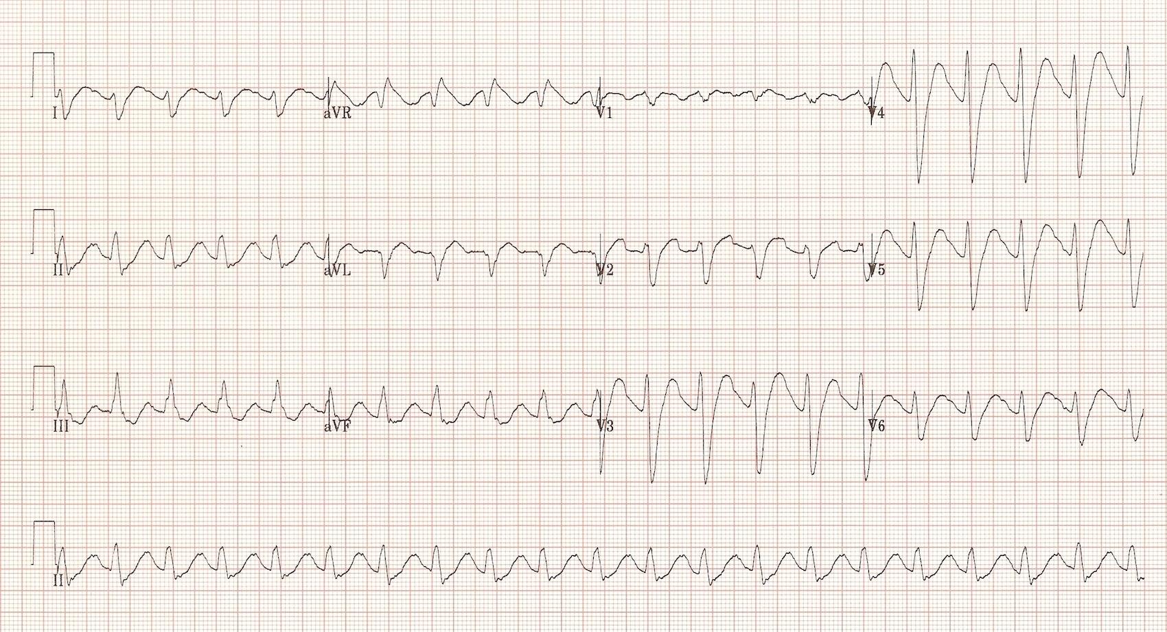 TCA Induced Cardiotoxicity